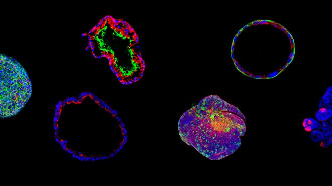 성체오가노이드로 살펴본 암, 낭포성 섬유증, 그리고 미래의학
